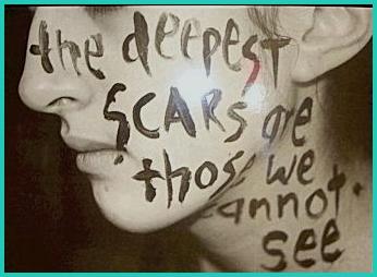 scars - writingforrecovery.wordpress com